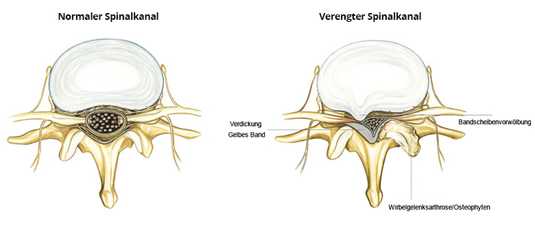 verengung des spinalkanals
